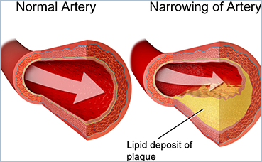 Narrowing Artery